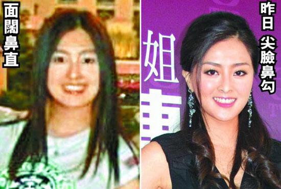 Tân Hoa hậu Hồng Kông bị tố 4 lần 'dao kéo'