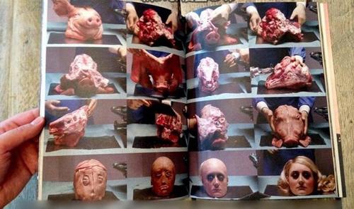 Những ca phẫu thuật kinh khủng nhất thế giới