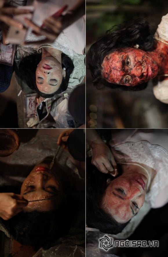 'Sốc' trước gương mặt bị biến dạng của Trang Nhung