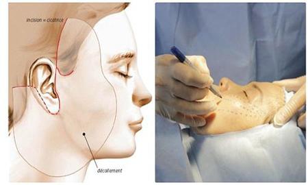 Điểm danh các phương pháp căng da mặt phổ biến - Ảnh 2