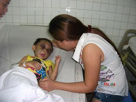 Phẫn nộ bé gái 4 tuổi nghi bị cha mẹ đánh chấn thương sọ não