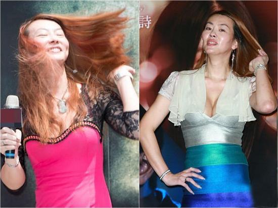 Nữ diễn viên Đài Loan xấu hổ vì biến dạng mặt sau thẩm mỹ