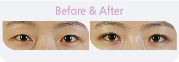 Sở hữu đôi mắt hai mí to tròn mà không cần phẫu thuật