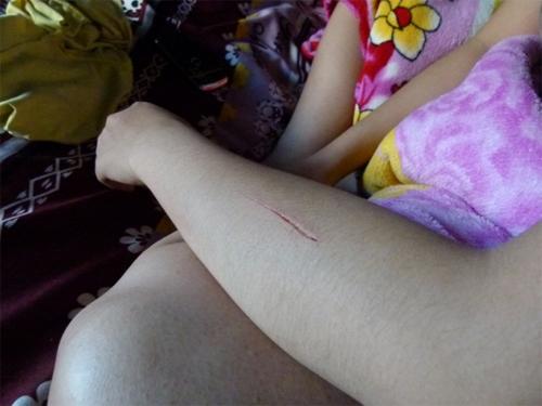 Nạn rạch mông, rạch đùi nữ sinh lan tới Nha Trang