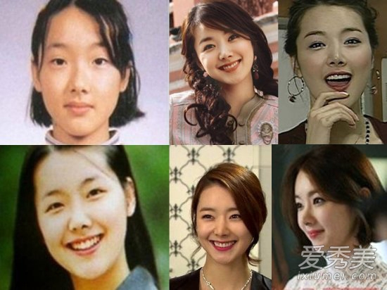 Sao Hàn thẩm mỹ 'xoành xoạch' khiến mặt thay đổi 180 độ