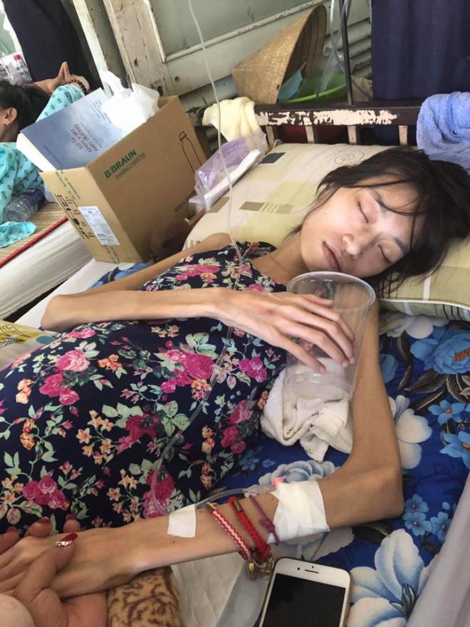 Người mẫu bị ung thư,mẫu 9x ung thư buồng trứng,Kim Anh