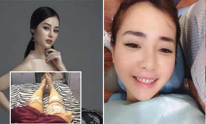 """Hot girl và hot boy 7/1/2018: Dung Doll """"tiền mất tật mang"""" khi phẫu thuật thẩm mỹ tăng chiều cao, Tăng Thiên Kim bọc răng sứ"""