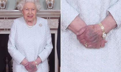 Vết bầm tím trên tay Nữ hoàng khiến dư luận hoang mang về thời khắc đau buồn của Hoàng gia sắp đến gần