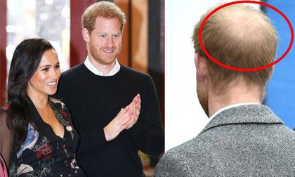 Cưới Meghan Markle, Hoàng tử Harry rụng tóc, hói đầu vì quá căng thẳng, bất lực